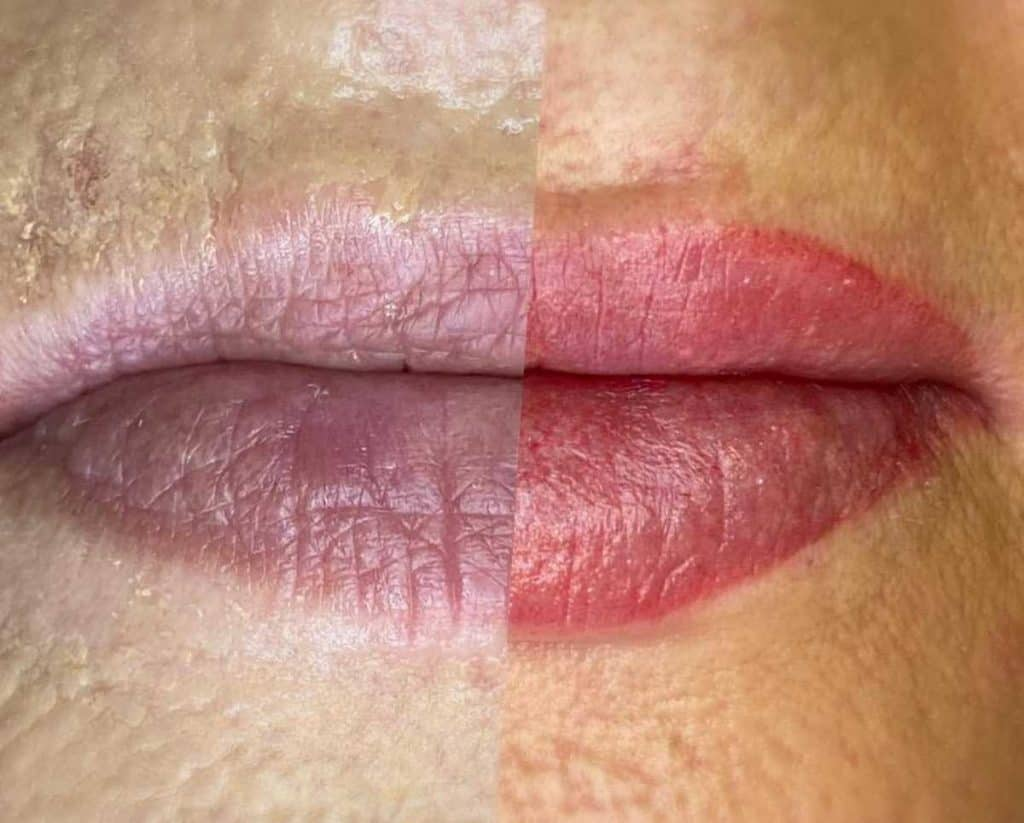 Tattoos By Rach Permanent Makeup Cosmetic Lip Tattoo
